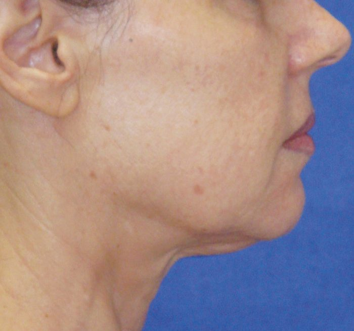 face and neck after treatment