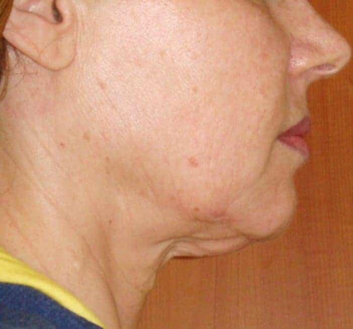 Face and Neck before treatment